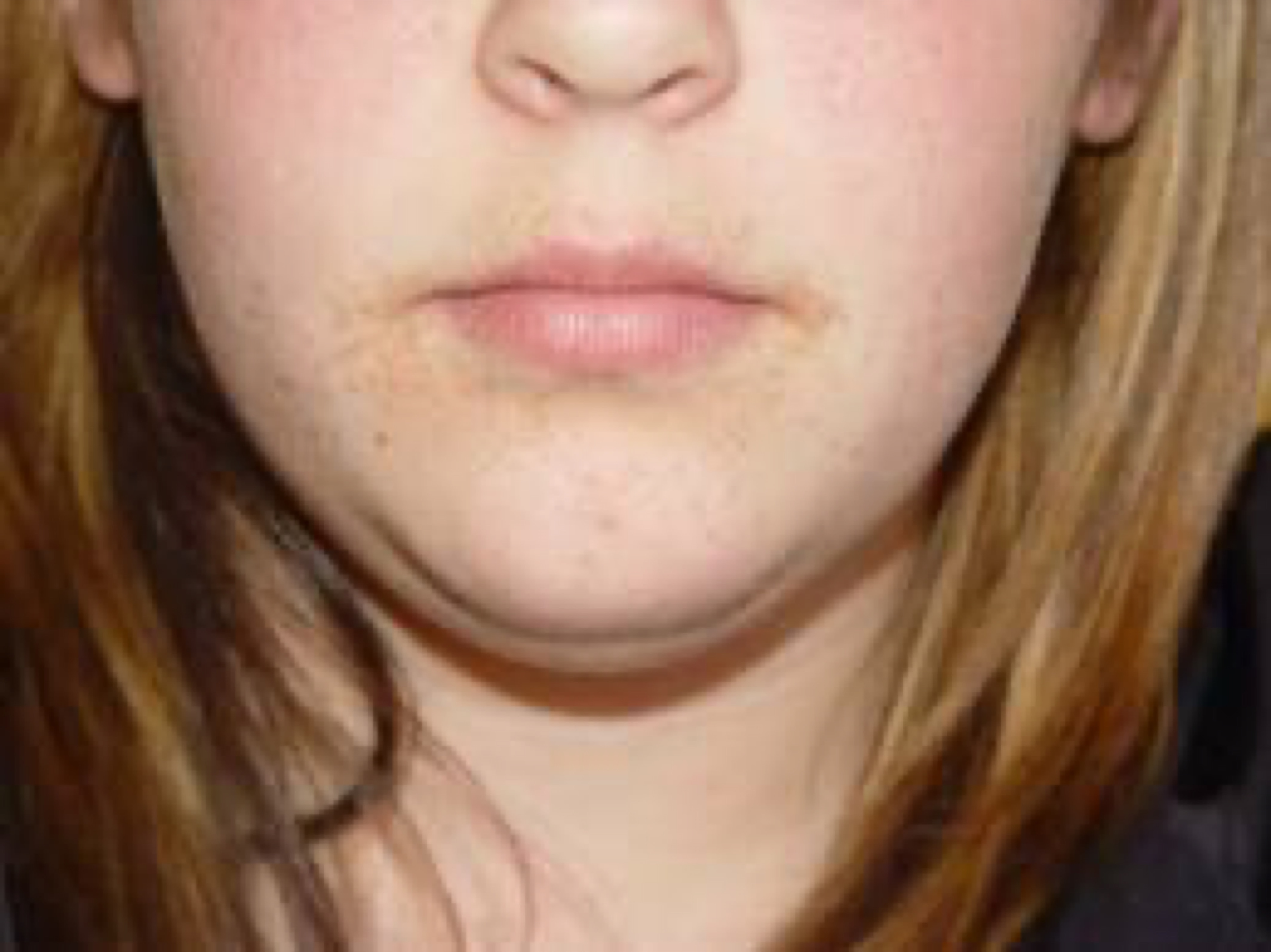 How To Treat Flat Warts In Children Young Adults Amoils Com