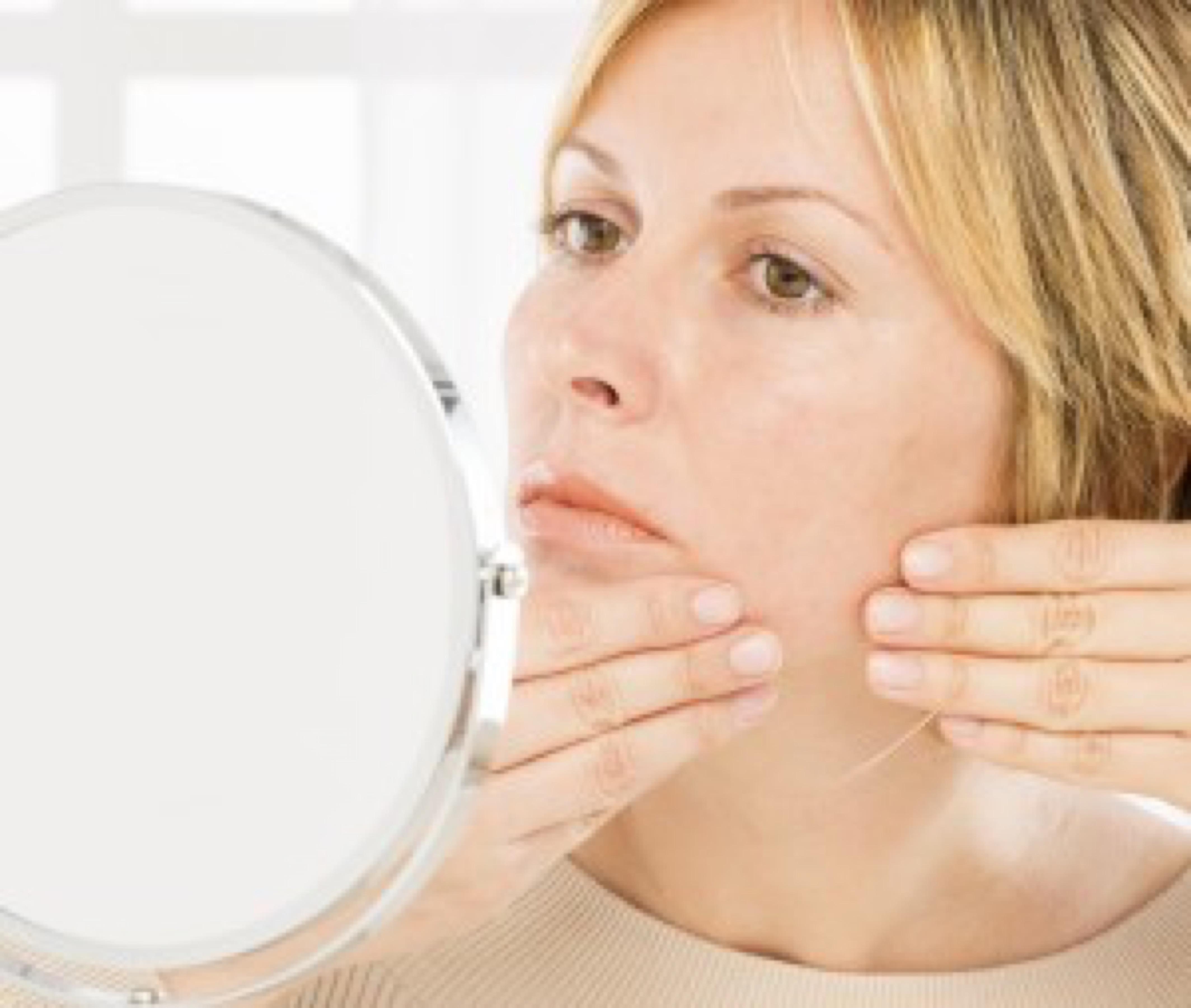 acne essentials stock