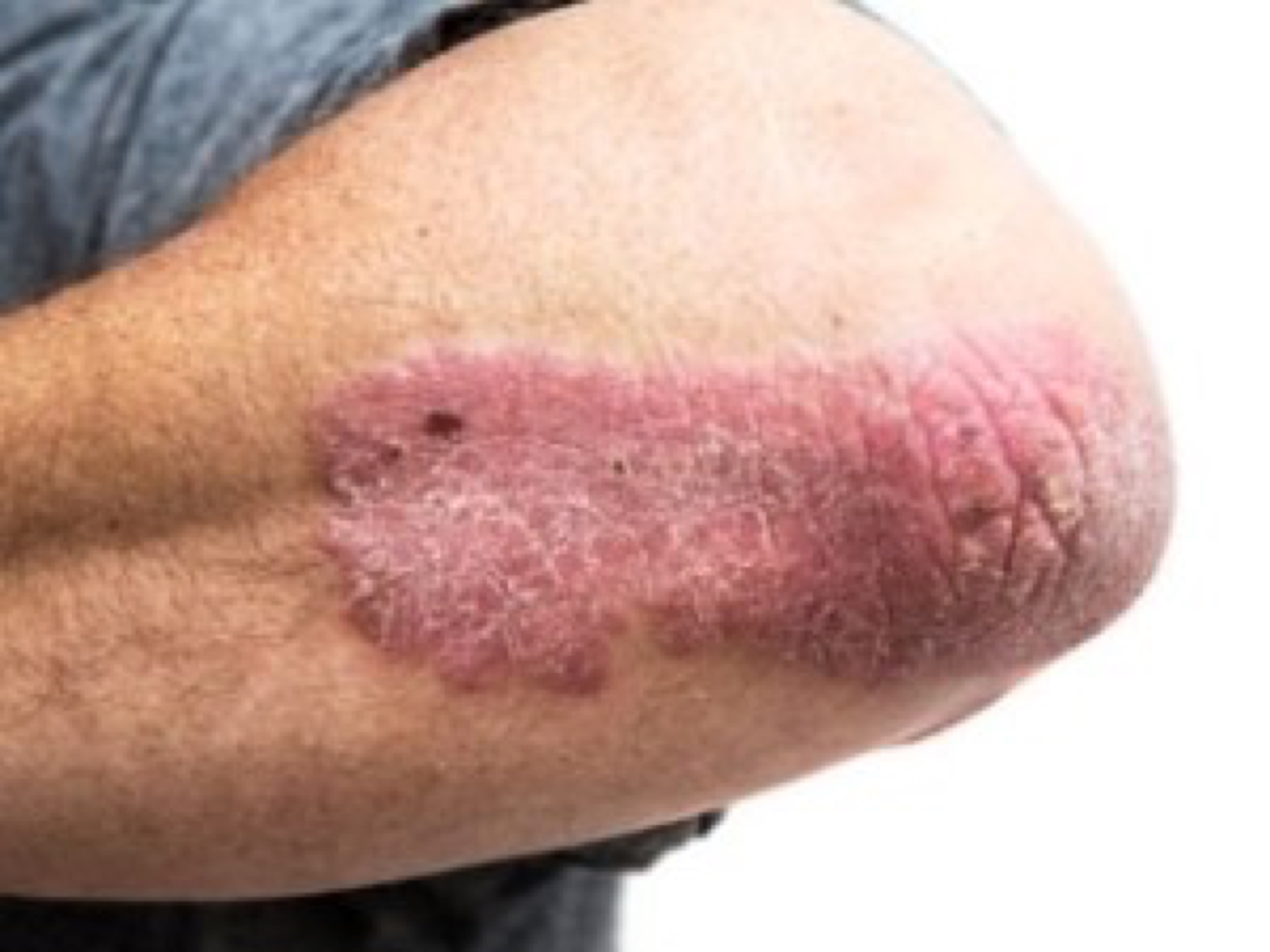 blog image - psoriasis on the elbow