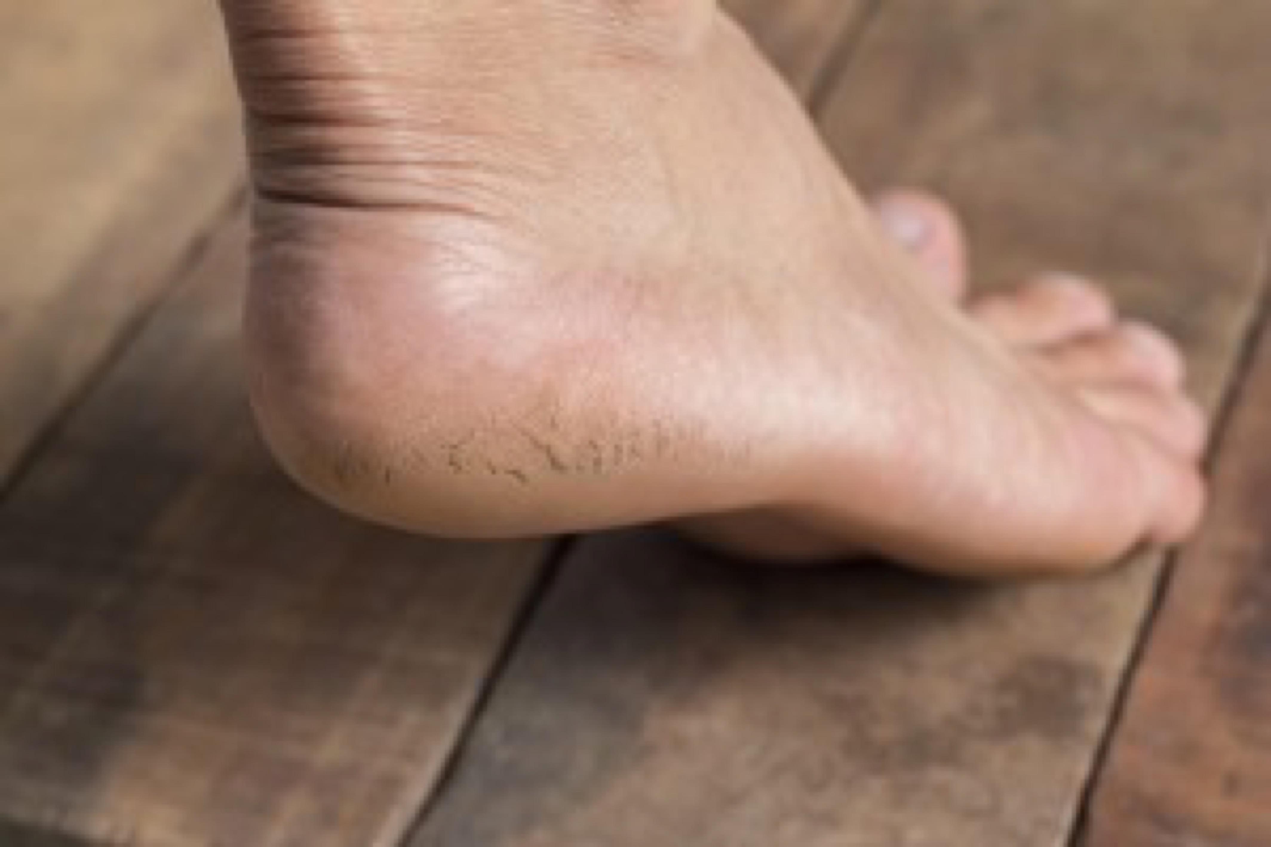 Close up of Cracks on Heels