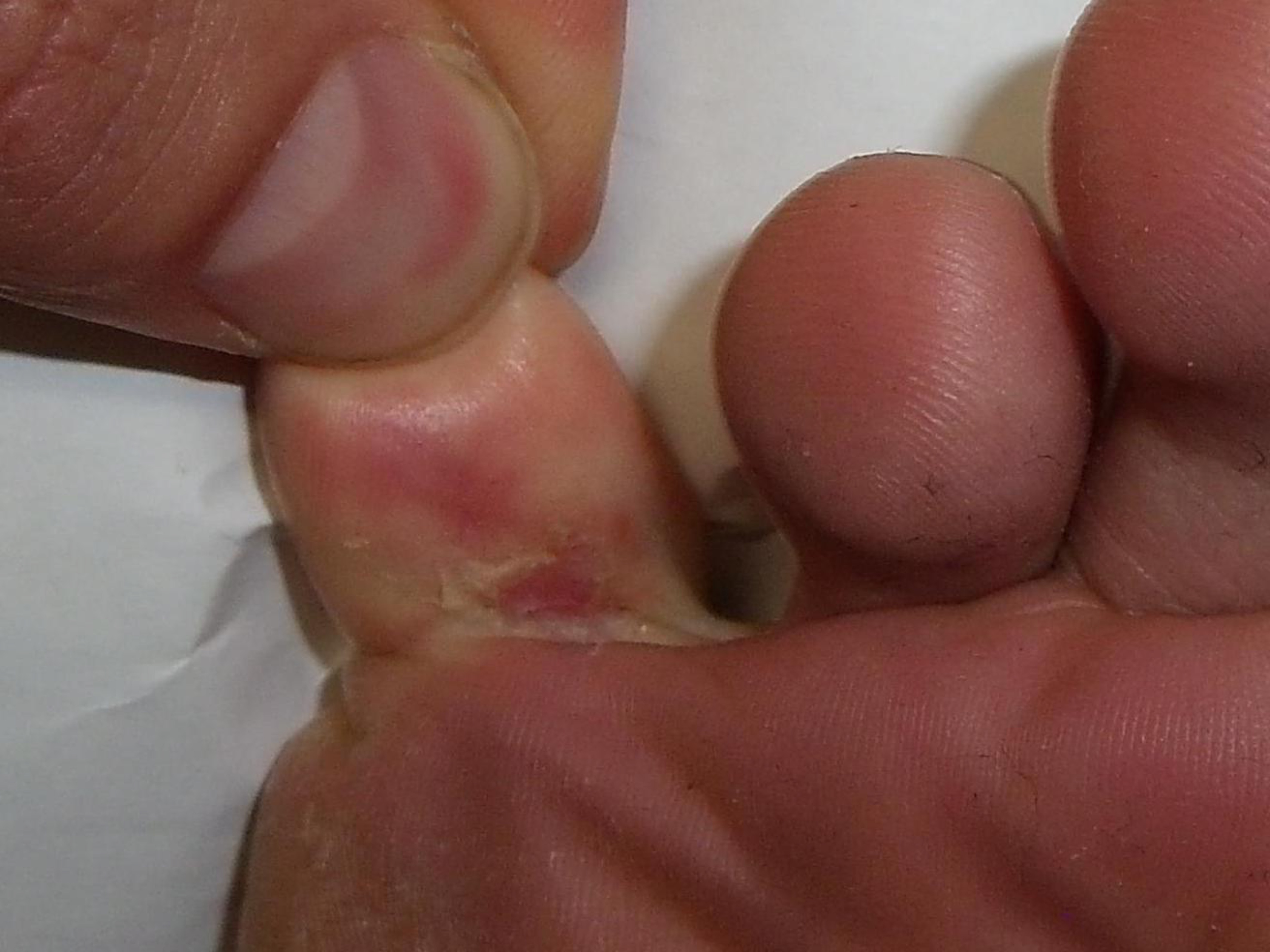 Athletes Foot Picture