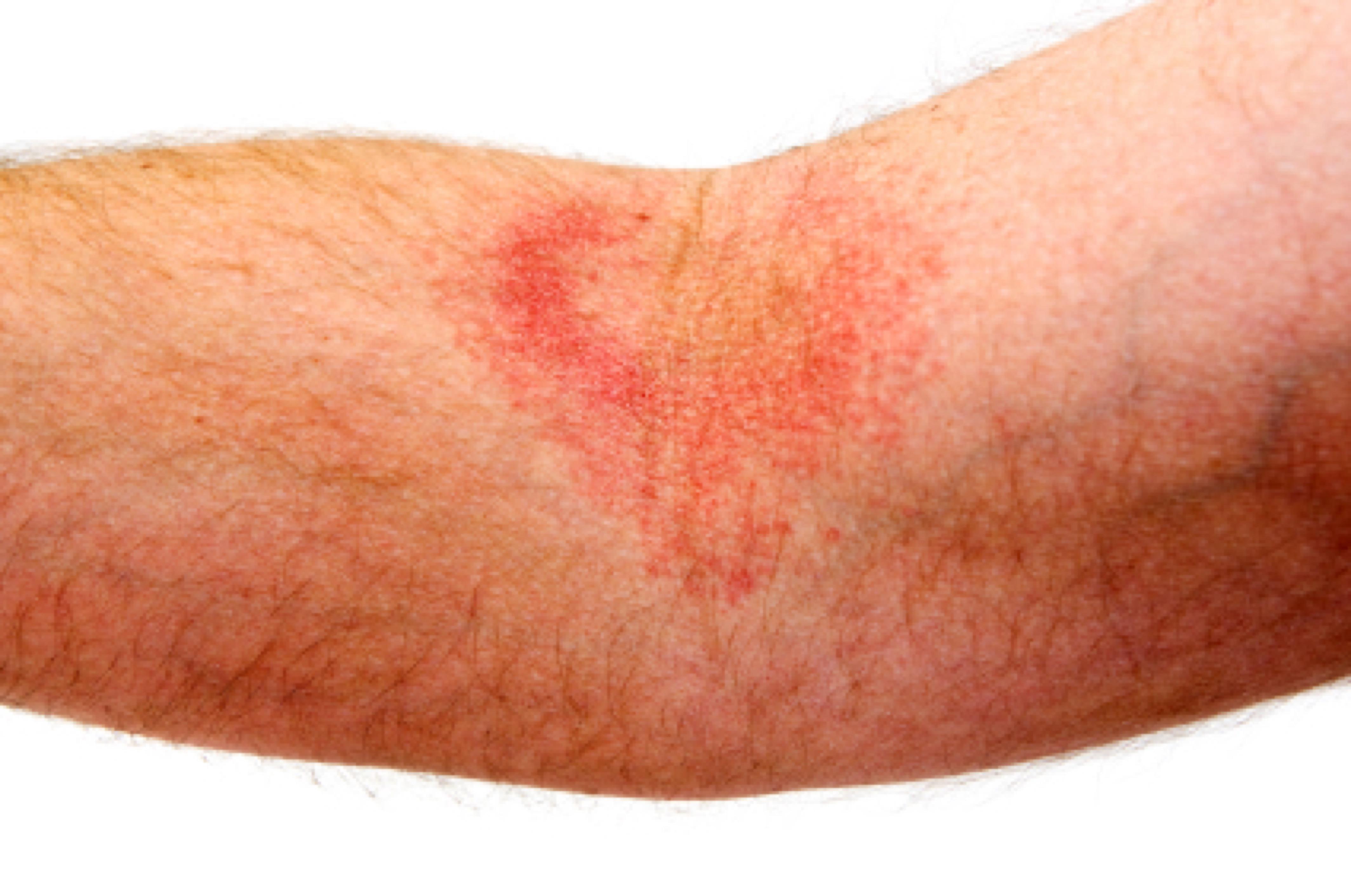 eczema on the arm