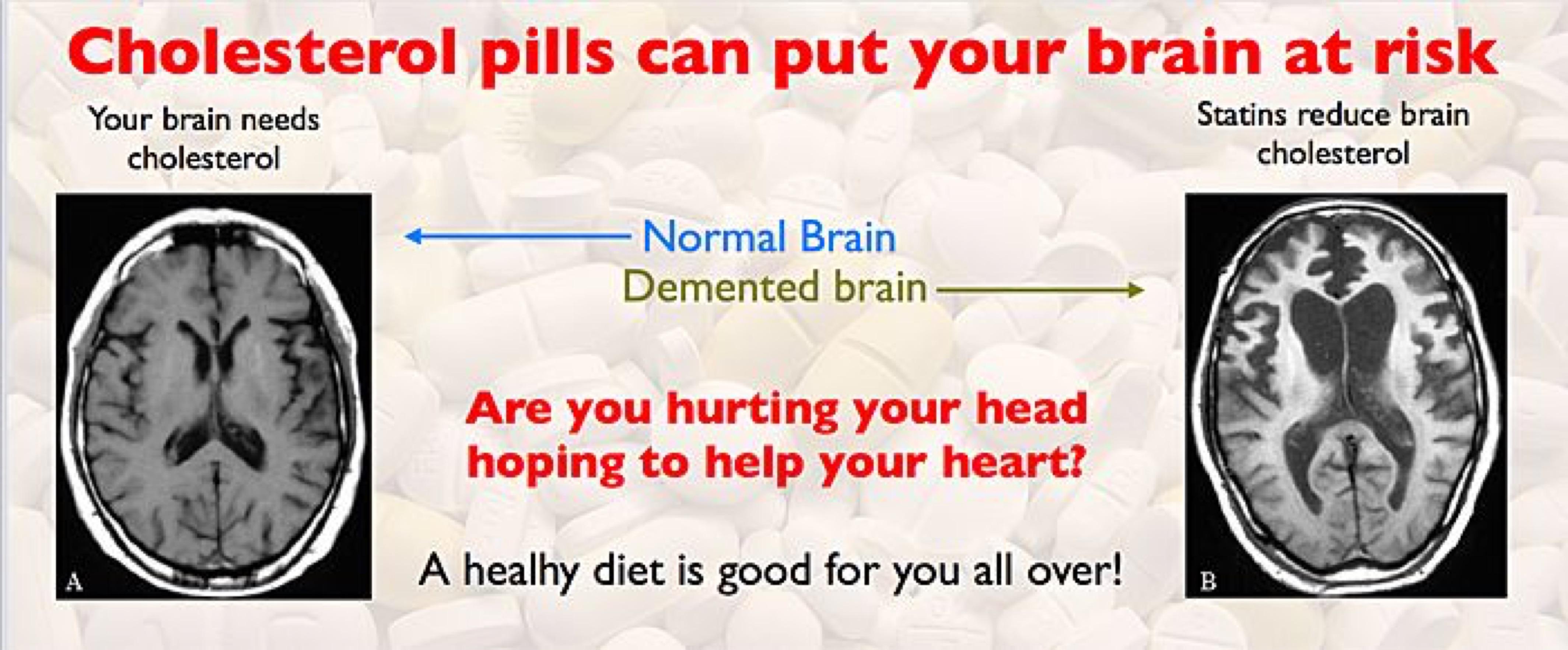 blog image - statins poster