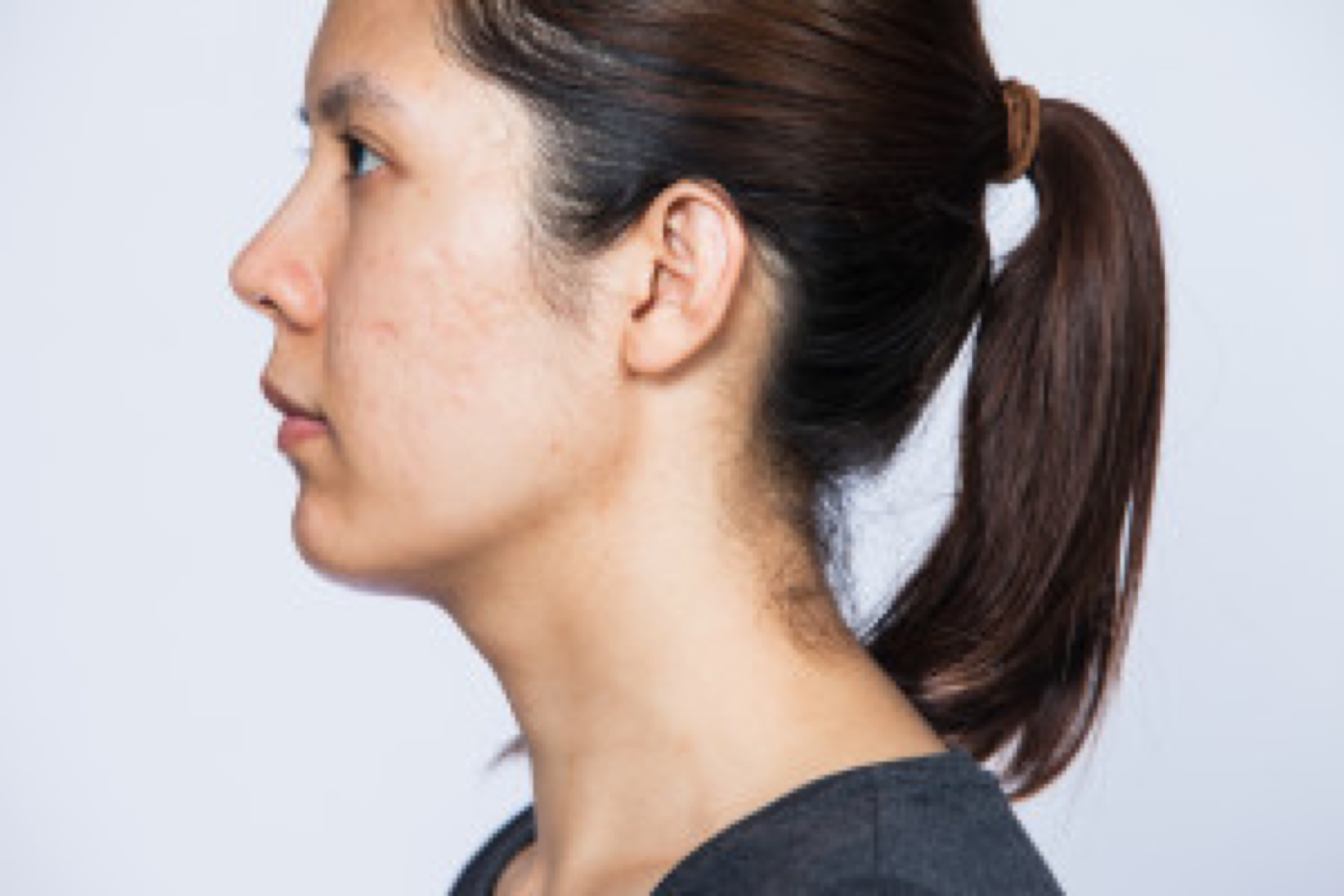 face scar from acne