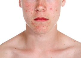 acne on young man