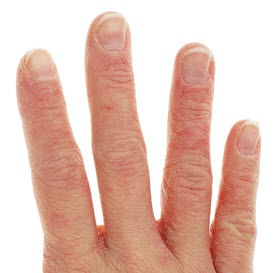 eczema signs - hand image