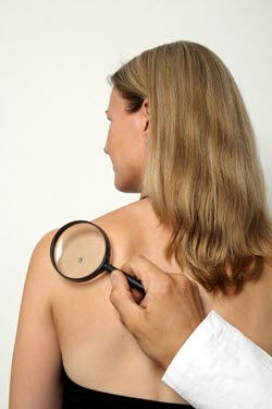 mole on woman's left shoulder area