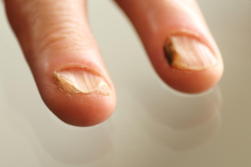 Yeast Infection Fingernails